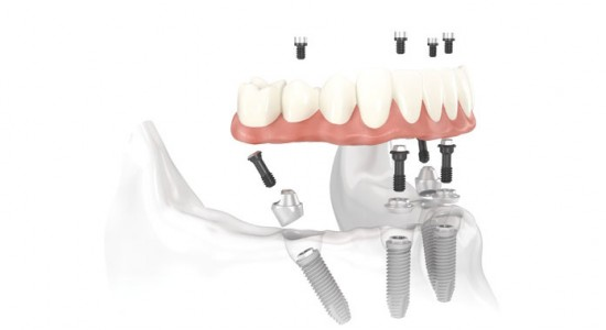 Bridge-implantaire-NobelProcera Implant Bridge-sur-piliers-Multi-unit Abutments